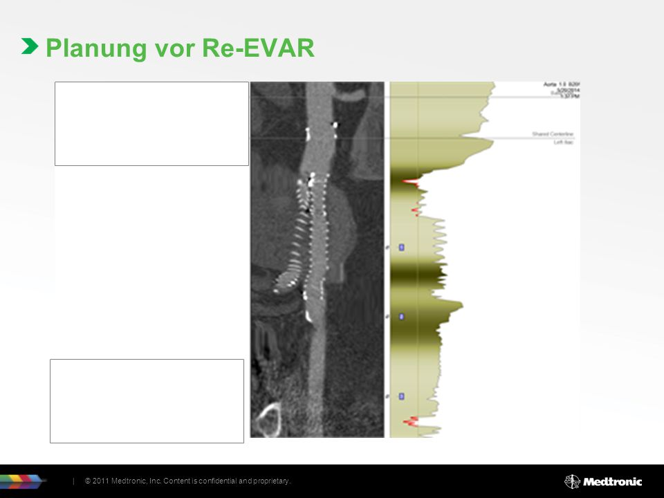 Materialauswahl Aortic Extension 25x25x49 Contralateral Limb 16x16x82