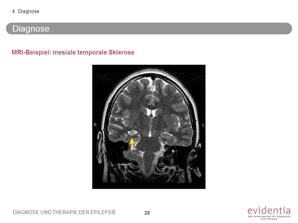 MRI-Beispiel: mesiale temporale Sklerose Diagnose 4. Diagnose DIAGNOSE UND THERAPIE DER EPILEPSIE 28