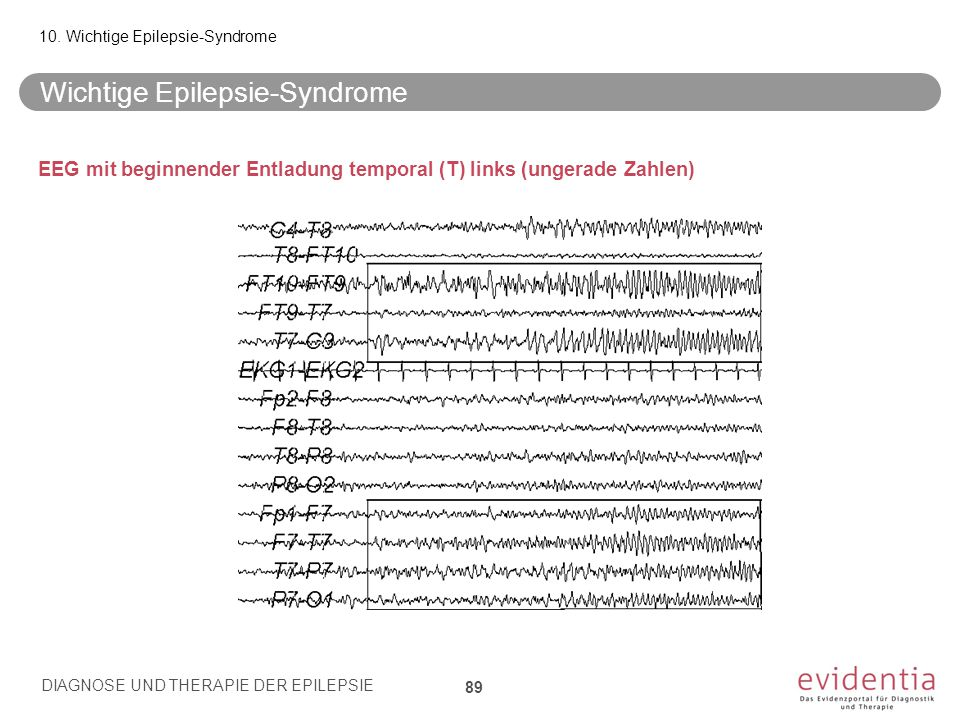 EEG mit beginnender Entladung temporal (T) links (ungerade Zahlen) Wichtige Epilepsie-Syndrome 10. Wichtige Epilepsie-Syndrome DIAGNOSE UND THERAPIE D