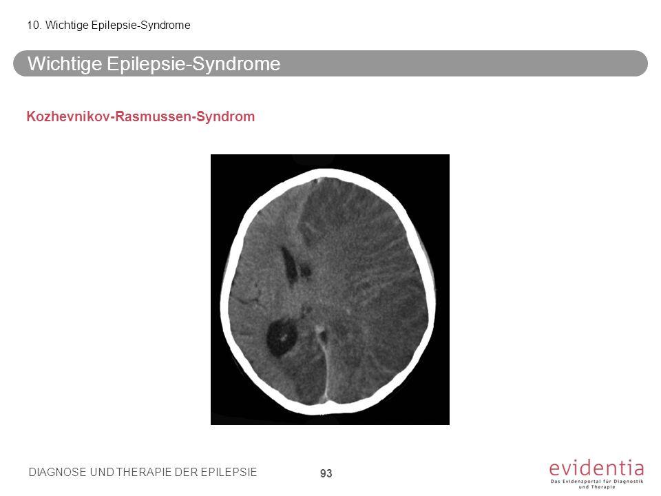 Kozhevnikov-Rasmussen-Syndrom Wichtige Epilepsie-Syndrome 10. Wichtige Epilepsie-Syndrome DIAGNOSE UND THERAPIE DER EPILEPSIE 93