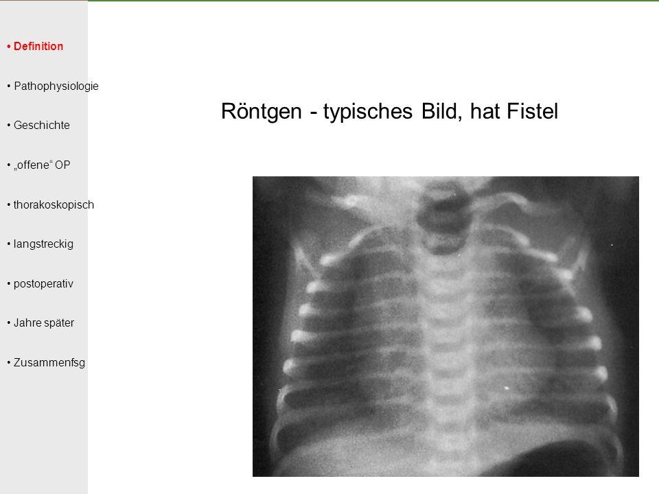 """Definition Pathophysiologie Geschichte """"offene"""" OP thorakoskopisch langstreckig postoperativ Jahre später Zusammenfsg Röntgen - typisches Bild, hat Fi"""