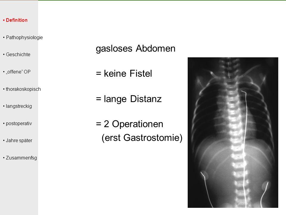 """Definition Pathophysiologie Geschichte """"offene"""" OP thorakoskopisch langstreckig postoperativ Jahre später Zusammenfsg gasloses Abdomen = keine Fistel"""