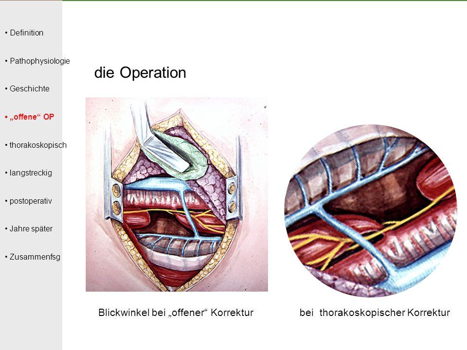 """Definition Pathophysiologie Geschichte """"offene"""" OP thorakoskopisch langstreckig postoperativ Jahre später Zusammenfsg die Operation Blickwinkel bei """"o"""
