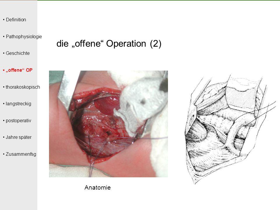 """Definition Pathophysiologie Geschichte """"offene"""" OP thorakoskopisch langstreckig postoperativ Jahre später Zusammenfsg die """"offene"""" Operation (2) Anato"""