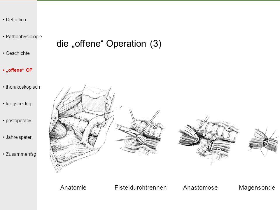 """Definition Pathophysiologie Geschichte """"offene"""" OP thorakoskopisch langstreckig postoperativ Jahre später Zusammenfsg die """"offene"""" Operation (3) Anato"""