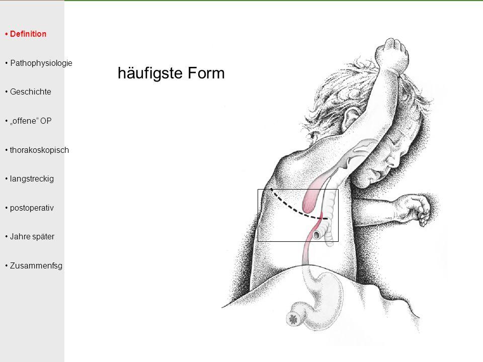 """Definition Pathophysiologie Geschichte """"offene"""" OP thorakoskopisch langstreckig postoperativ Jahre später Zusammenfsg häufigste Form"""