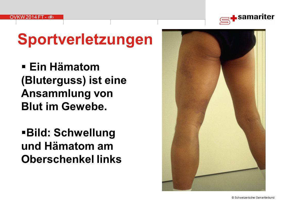 OVKW 2014 FT - 7 © Schweizerischer Samariterbund Sportverletzungen  Ein Hämatom (Bluterguss) ist eine Ansammlung von Blut im Gewebe.