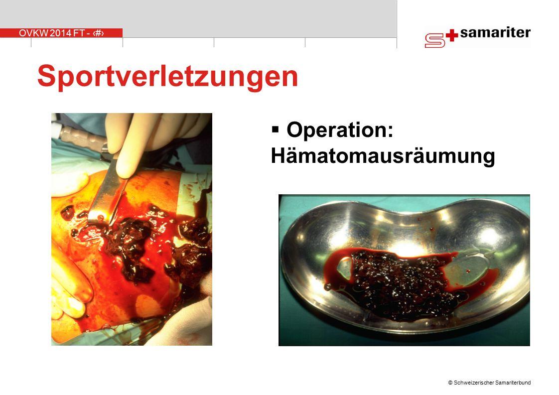 OVKW 2014 FT - 8 © Schweizerischer Samariterbund Sportverletzungen  Operation: Hämatomausräumung