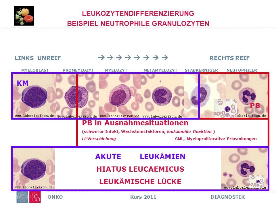 ONKO Kurs 2011 DIAGNOSTIK LEUKOZYTENDIFFERENZIERUNG BEISPIEL NEUTROPHILE GRANULOZYTEN PB in Ausnahmesituationen (schwerer Infekt, Wachstumsfaktoren, l