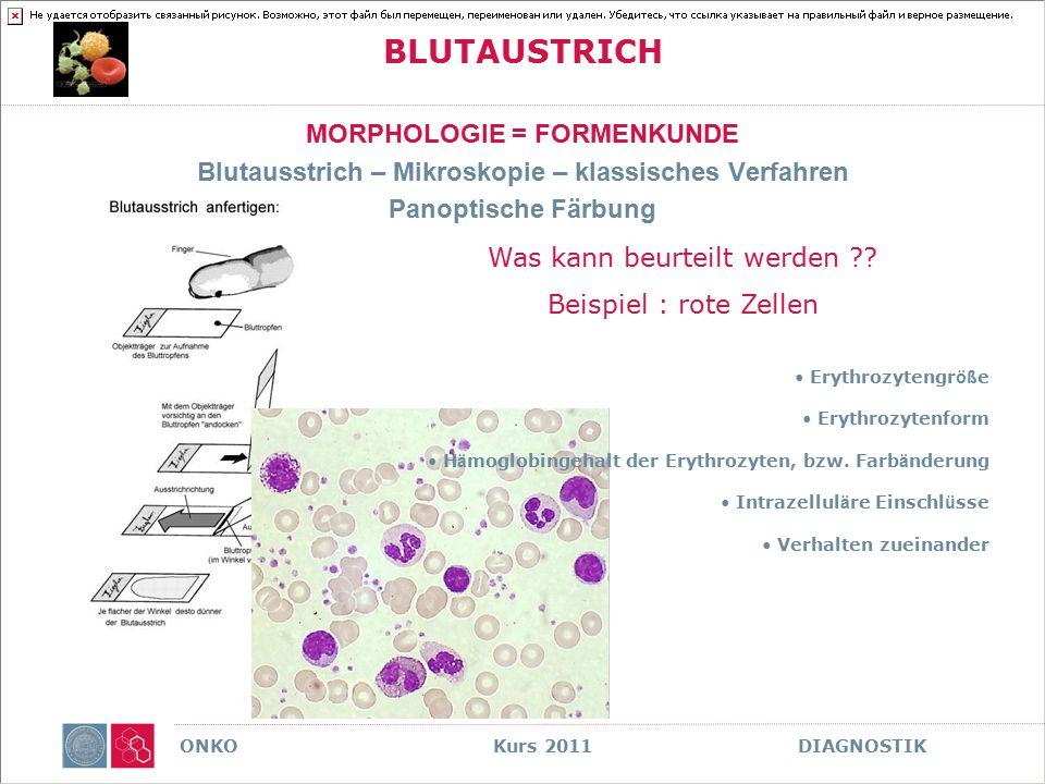 ONKO Kurs 2011 DIAGNOSTIK BLUTAUSTRICH MORPHOLOGIE = FORMENKUNDE Blutausstrich – Mikroskopie – klassisches Verfahren Panoptische Färbung Was kann beur