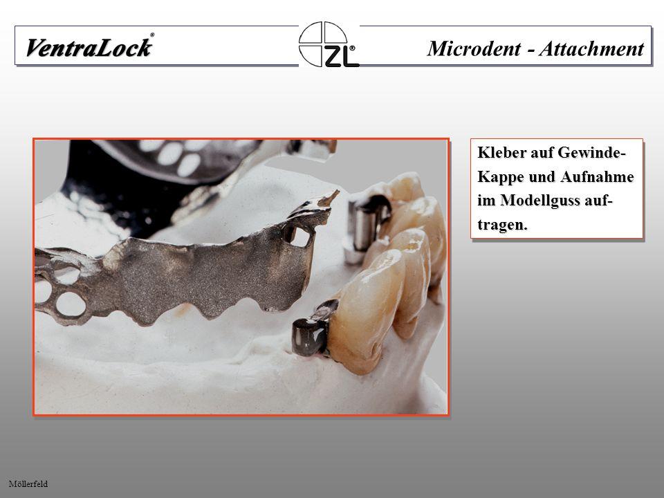 Kleber auf Gewinde- Kappe und Aufnahme im Modellguss auf- tragen. Kleber auf Gewinde- Kappe und Aufnahme im Modellguss auf- tragen. Microdent - Attach