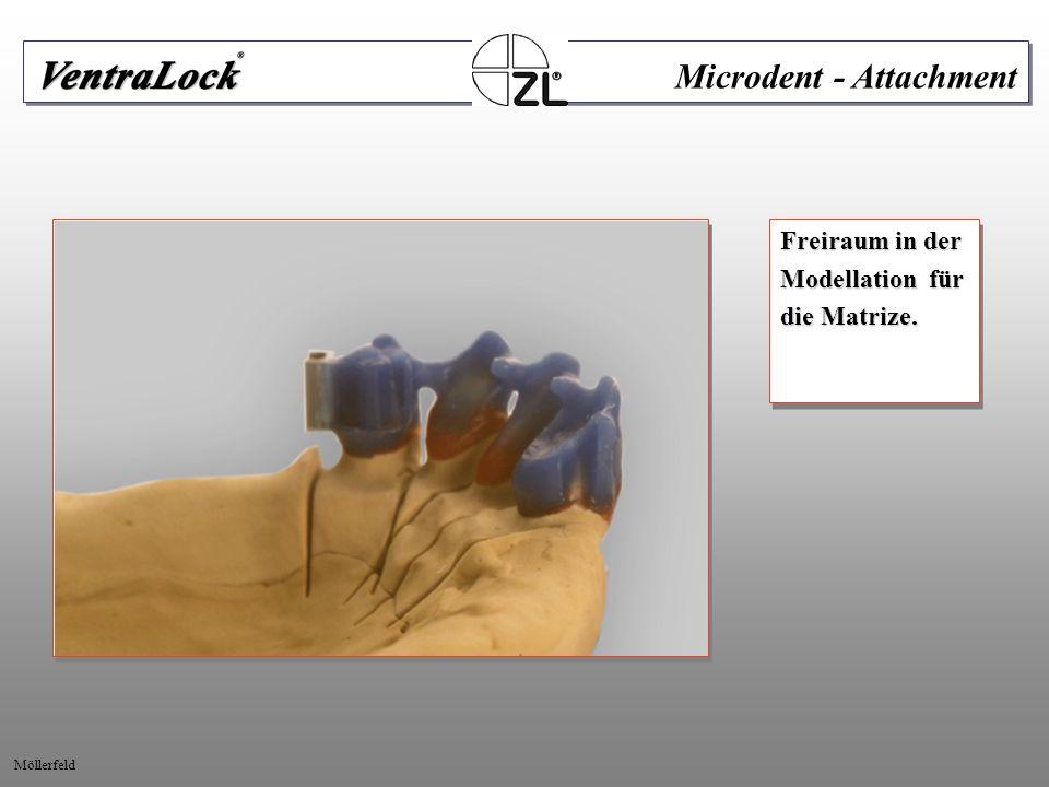 Freiraum in der Modellation für die Matrize. Freiraum in der Modellation für die Matrize. Microdent - Attachment Möllerfeld