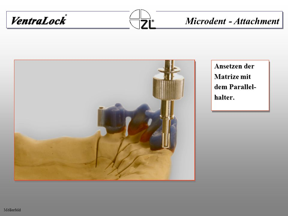 Ansetzen der Matrize mit dem Parallel- halter. Ansetzen der Matrize mit dem Parallel- halter. Microdent - Attachment Möllerfeld