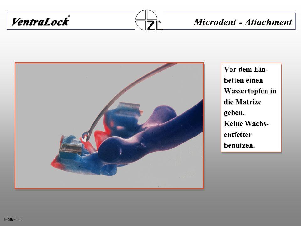 Objekte mit Al 2 0 3 abgestrahlt. abgestrahlt. Microdent - Attachment Möllerfeld