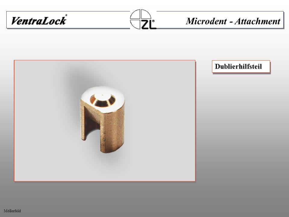 AufgesetztesDublierhilfsteil.Ausgeblockte Kronen und Modell.AufgesetztesDublierhilfsteil.Ausgeblockte Modell.