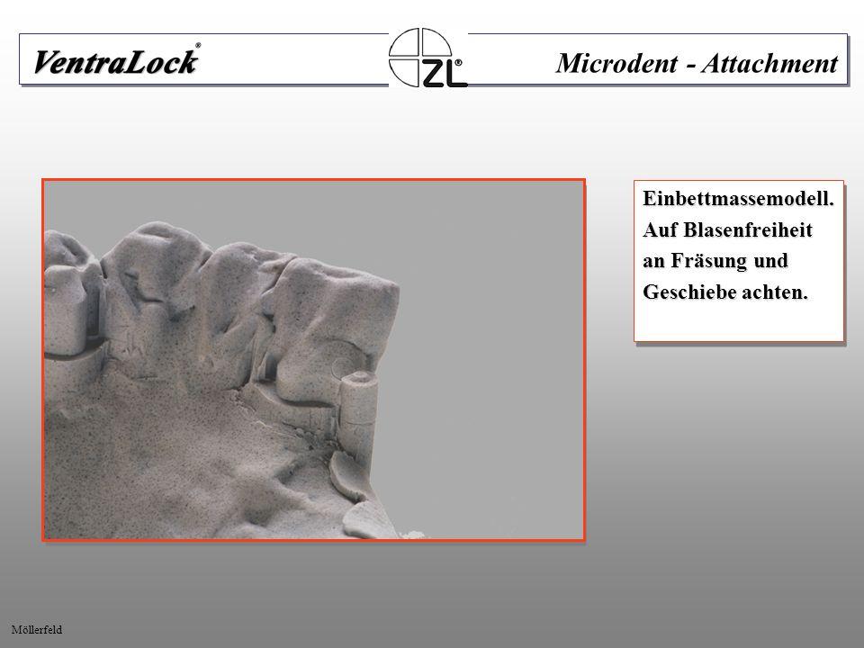 Nach Polymerisation Patrize ausschrauben und Kleberüberschuss entfernen.