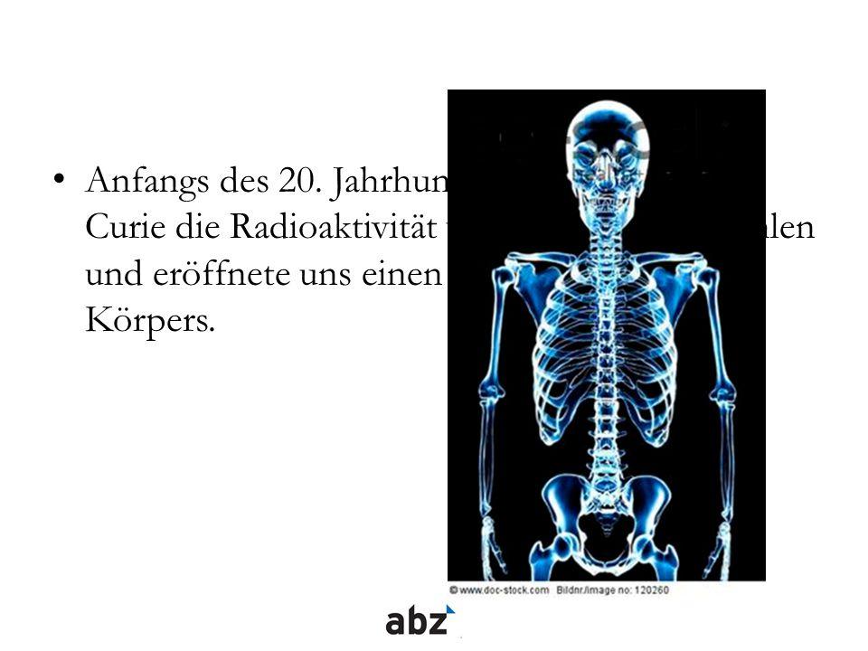 Anfangs des 20. Jahrhunderts entdeckt Marie Curie die Radioaktivität und die Röntgenstrahlen und eröffnete uns einen Blick ins Innere des Körpers.