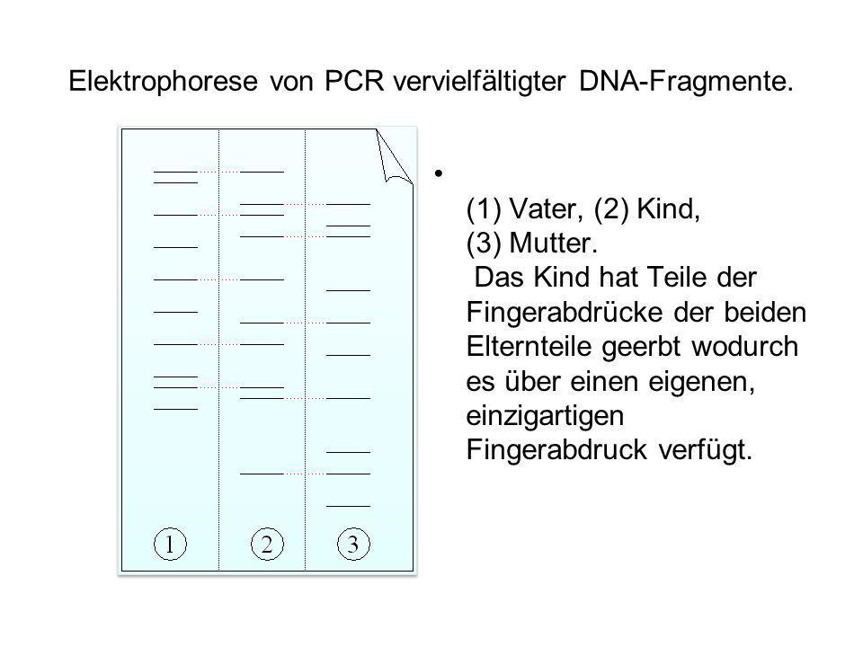 Elektrophorese von PCR vervielfältigter DNA-Fragmente. (1) Vater, (2) Kind, (3) Mutter. Das Kind hat Teile der Fingerabdrücke der beiden Elternteile g