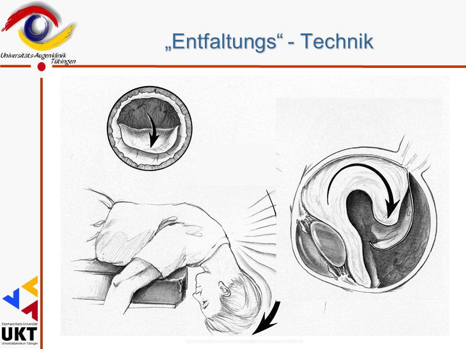 """""""Entfaltungs"""" - Technik"""