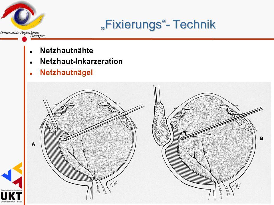 """""""Fixierungs""""- Technik l Netzhautnähte l Netzhaut-Inkarzeration l Netzhautnägel"""