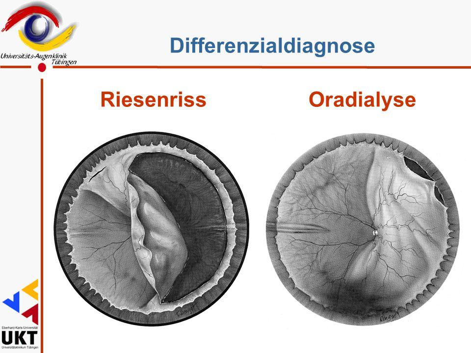 RiesenrissOradialyse Differenzialdiagnose Ist die Unterscheidung relevant ?