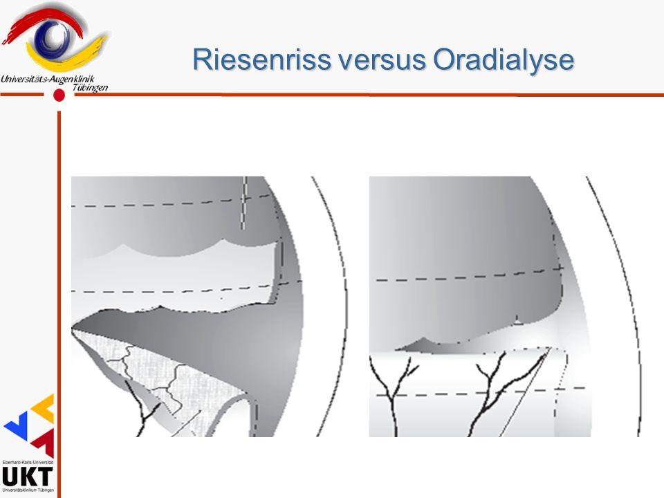 Riesenriss versus Oradialyse