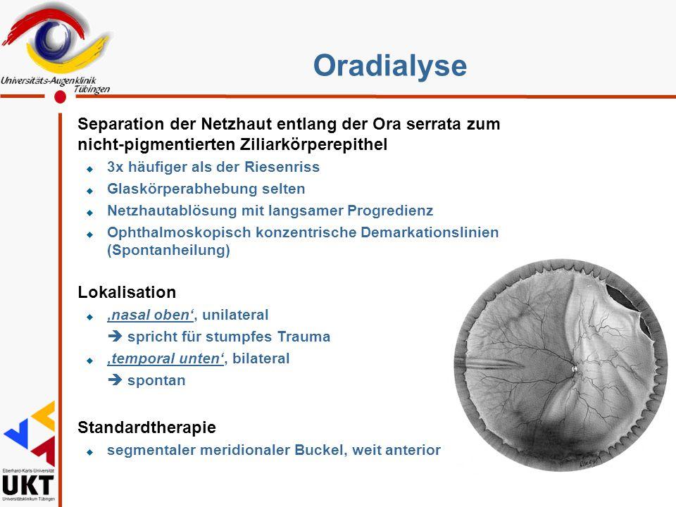 Prophylaxe l Cerclage l Zirkuläre Kryoapplikation l Lasercerclage l Laser Spikes