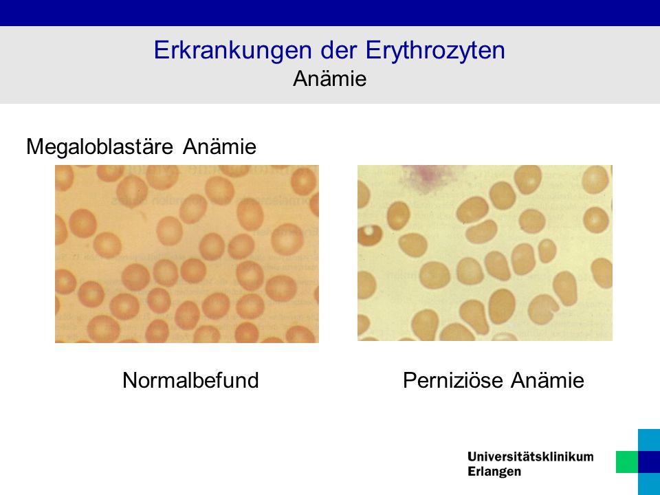 Megaloblastäre Anämie NormalbefundPerniziöse Anämie Erkrankungen der Erythrozyten Anämie