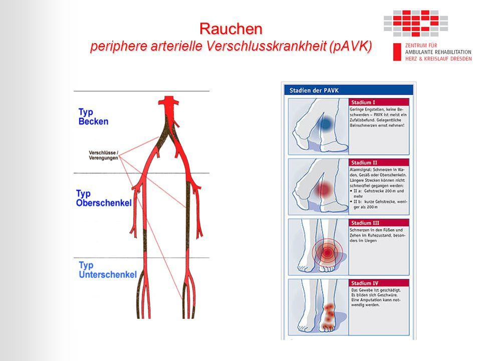 Rauchen periphere arterielle Verschlusskrankheit (pAVK)