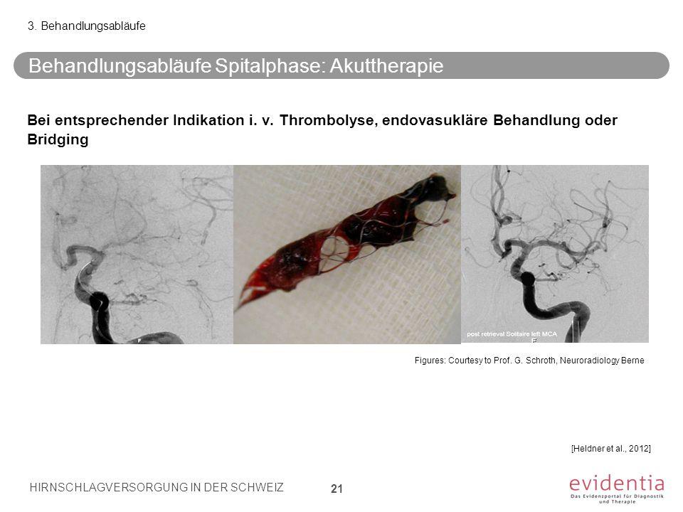 Behandlungsabläufe Spitalphase: Akuttherapie 21 3. Behandlungsabläufe Bei entsprechender Indikation i. v. Thrombolyse, endovasukläre Behandlung oder B