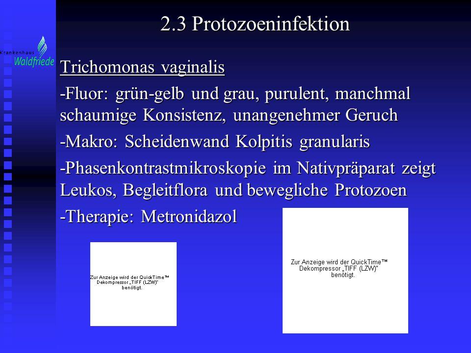 2.3 Protozoeninfektion Trichomonas vaginalis -Fluor: grün-gelb und grau, purulent, manchmal schaumige Konsistenz, unangenehmer Geruch -Makro: Scheiden