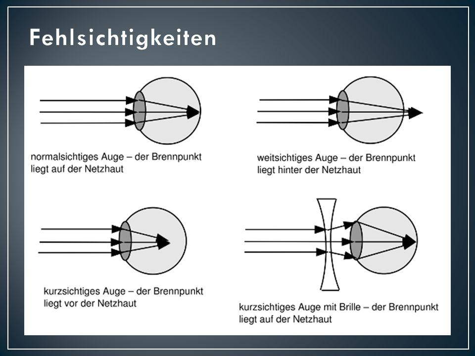 Augenarzt Ferdinand Monoyer Augenarzt Maßeinheit für die Brechkraft eines optischen Systems (z.B.