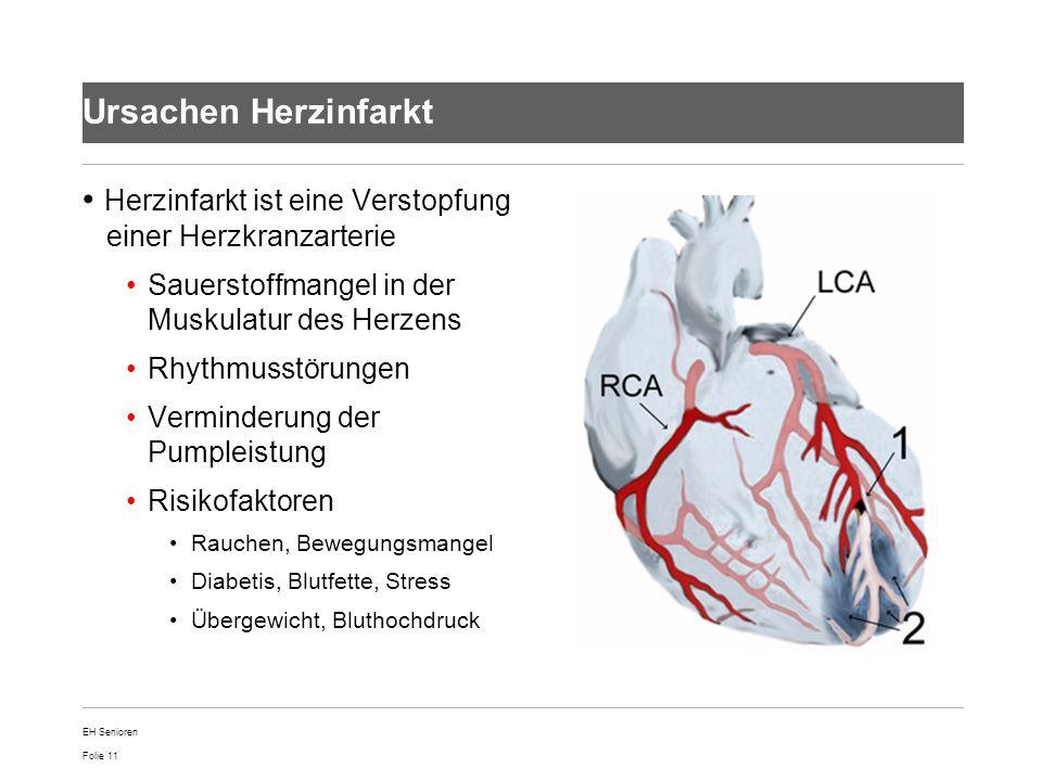 Folie 11 Ursachen Herzinfarkt Herzinfarkt ist eine Verstopfung einer Herzkranzarterie Sauerstoffmangel in der Muskulatur des Herzens Rhythmusstörungen