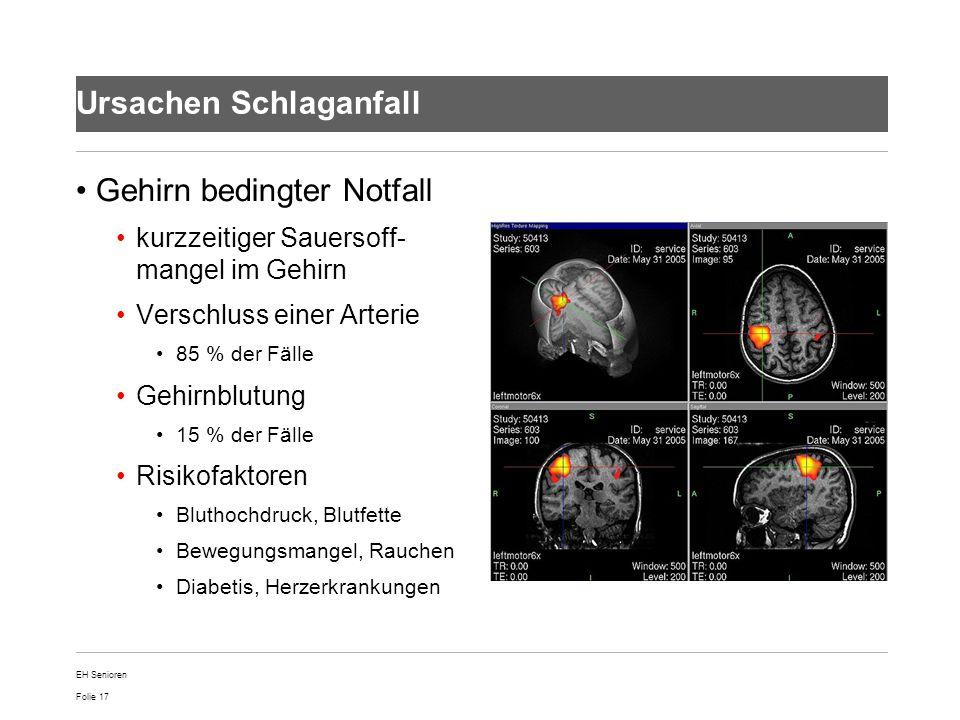 Folie 17 Ursachen Schlaganfall Gehirn bedingter Notfall kurzzeitiger Sauersoff- mangel im Gehirn Verschluss einer Arterie 85 % der Fälle Gehirnblutung