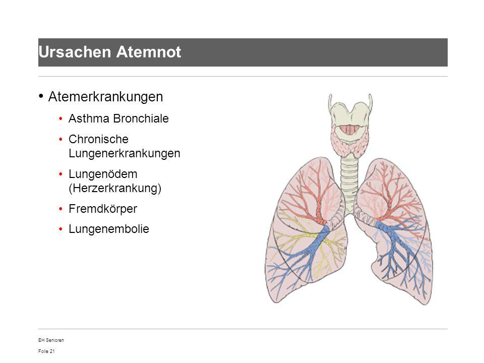 Folie 21 Ursachen Atemnot Atemerkrankungen Asthma Bronchiale Chronische Lungenerkrankungen Lungenödem (Herzerkrankung) Fremdkörper Lungenembolie EH Se