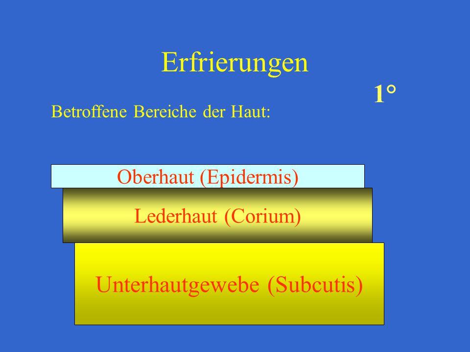 Erfrierungen Betroffene Bereiche der Haut: Oberhaut (Epidermis) Lederhaut (Corium) Unterhautgewebe (Subcutis) 1°