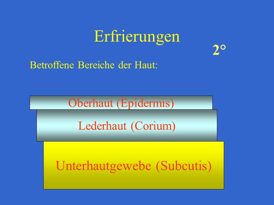Erfrierungen Betroffene Bereiche der Haut: Oberhaut (Epidermis) Lederhaut (Corium) Unterhautgewebe (Subcutis) 2°