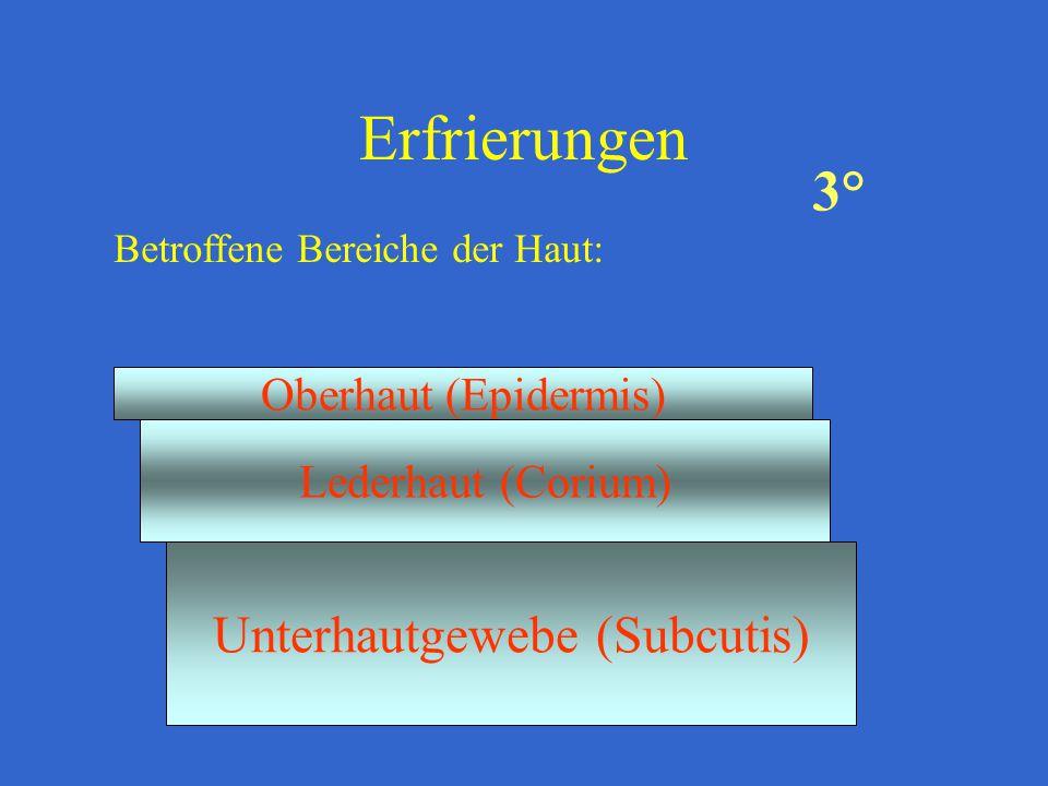 Erfrierungen Betroffene Bereiche der Haut: Oberhaut (Epidermis) Lederhaut (Corium) Unterhautgewebe (Subcutis) 3°