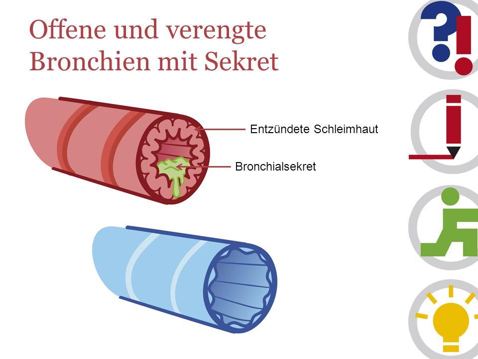 Offene und verengte Bronchien mit Sekret Entzündete Schleimhaut Bronchialsekret