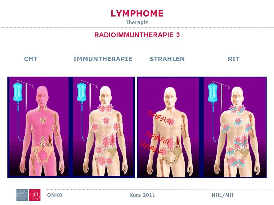 LYMPHOME THERAPIE ZUSAMMENFASSUNG Wichtiger UnterschiedPalliativ vs Kurativ Standard Chemo-Immuntherapie ImmuntherapieTrend zur Erhaltung Chirurgie i.d.R.