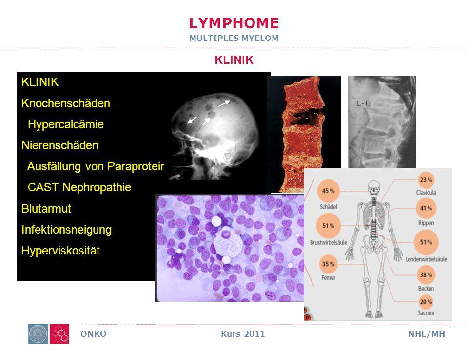 LYMPHOME MULTIPLES MYELOM DIAGNOSE ONKO Kurs 2011NHL/MH