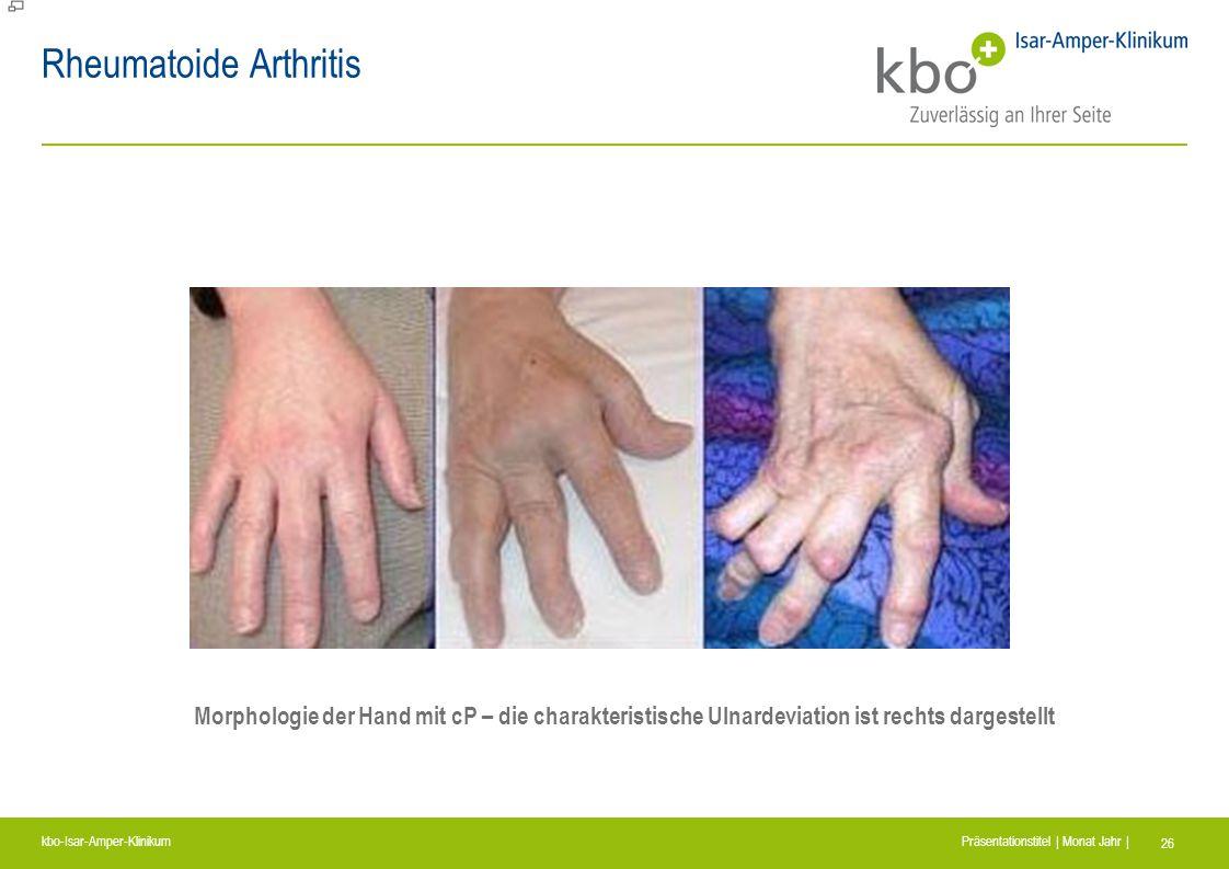 kbo-Isar-Amper-Klinikum Präsentationstitel | Monat Jahr | 26 Rheumatoide Arthritis Morphologie der Hand mit cP – die charakteristische Ulnardeviation