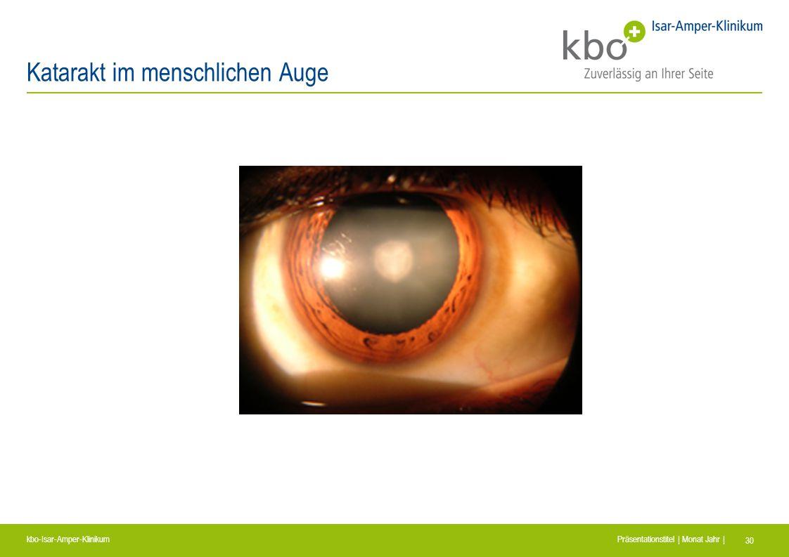 kbo-Isar-Amper-Klinikum Präsentationstitel | Monat Jahr | 30 Katarakt im menschlichen Auge