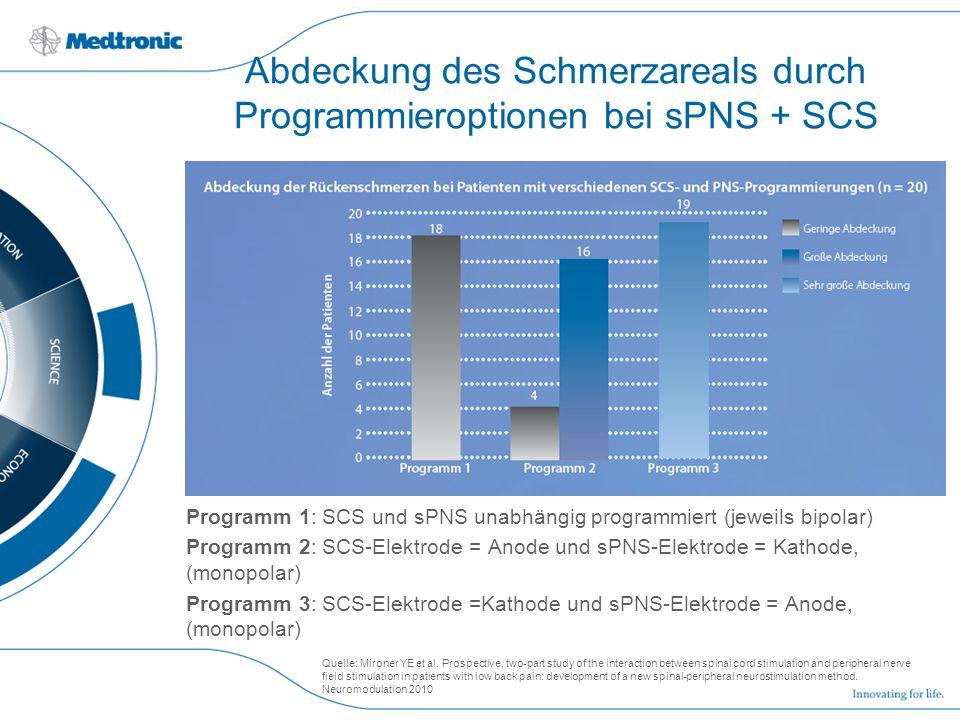 Abdeckung des Schmerzareals durch Programmieroptionen bei sPNS + SCS Programm 1: SCS und sPNS unabhängig programmiert (jeweils bipolar) Programm 2: SC