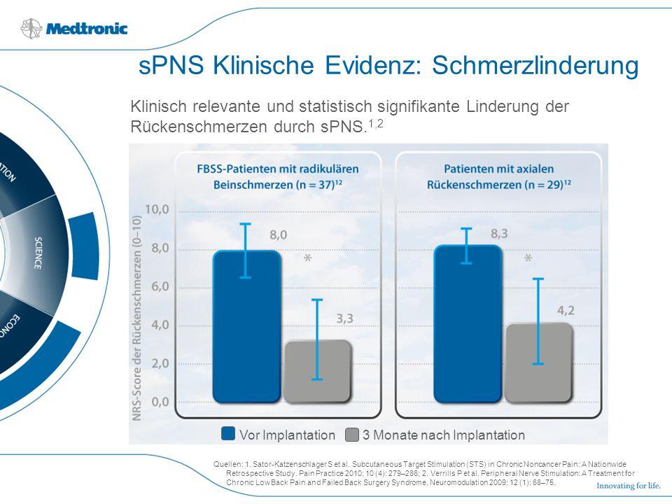 sPNS Klinische Evidenz: Schmerzlinderung Klinisch relevante und statistisch signifikante Linderung der Rückenschmerzen durch sPNS. 1,2 Quellen: 1. Sat