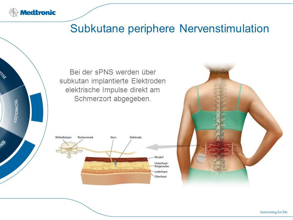 Subkutane periphere Nervenstimulation Bei der sPNS werden über subkutan implantierte Elektroden elektrische Impulse direkt am Schmerzort abgegeben.