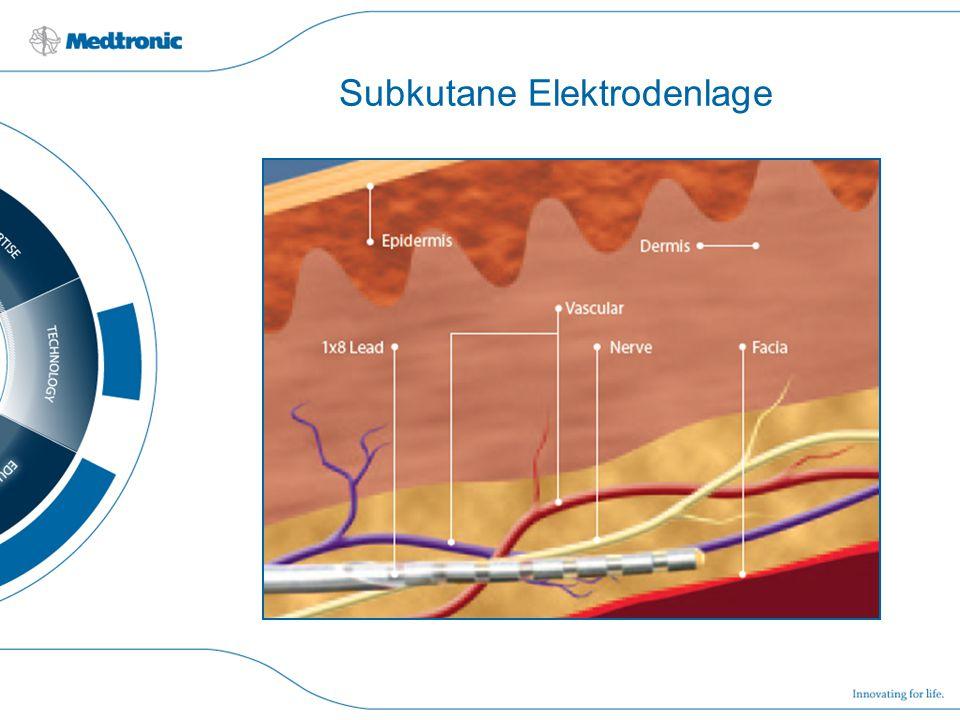 Subkutane Elektrodenlage
