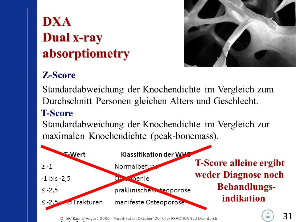 © IhF/ Baum/ August 2006 – Modifikation Oktober 2010 für PRACTICA Bad Orb durch Günther Egidi 31 DXA Dual x-ray absorptiometry Z-Score Standardabweich