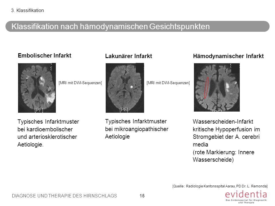 Typisches Infarktmuster bei kardioembolischer und arteriosklerotischer Aetiologie. Typisches Infarktmuster bei mikroangiopathischer Aetiologie Wassers