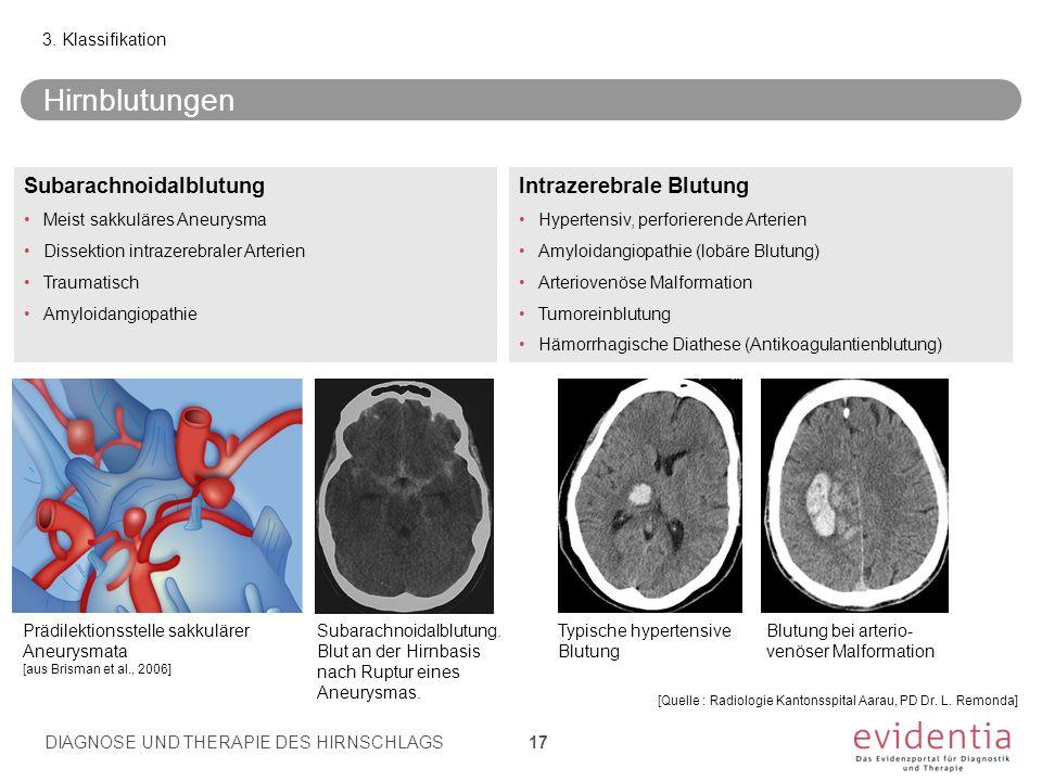 3. Klassifikation Subarachnoidalblutung Meist sakkuläres Aneurysma Dissektion intrazerebraler Arterien Traumatisch Amyloidangiopathie Intrazerebrale B